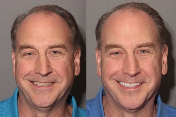 Full Mouth Makeover: Patient 3