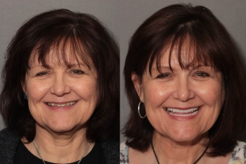 Full Mouth Makeover: Patient 4