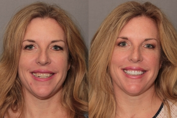 Porcelain Veneers: Patient 4