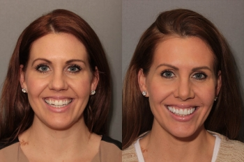 Porcelain Veneers: Patient 7