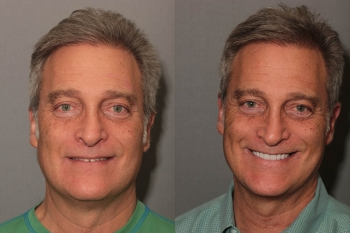 Porcelain Veneers: Patient 10